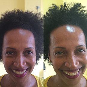 O antes e depois da Célia Alves